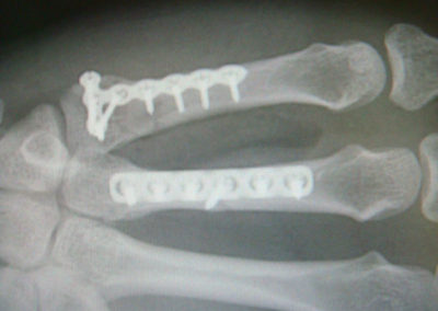 Fracture - After ORIF Repair